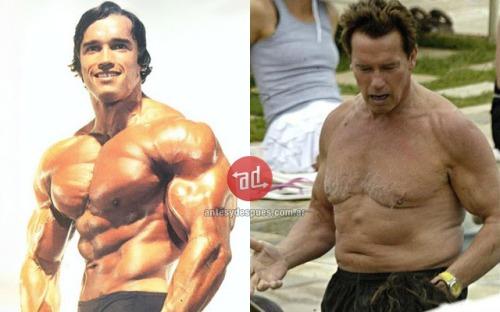 musculos_Arnold-Schwarzenegger_viejo_www.antesydespues.com.ar